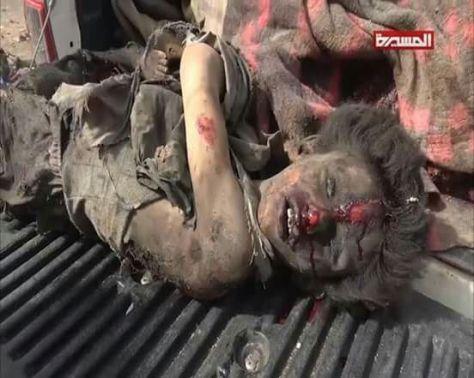 Bis Anak Anak Yaman dalam Seraangan Saudi