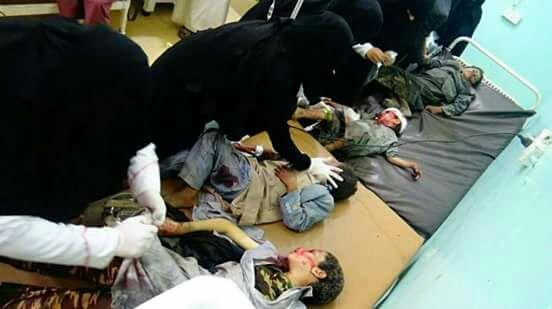 Bis Anak Anak Yaman dan Saudi